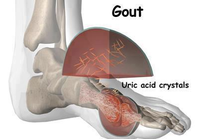 how to reduce uric acid levels in blood treatment of gout vs pseudogout gout treatment naturally